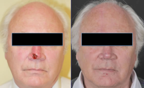 Skin and cartilage defect of half of the nasal tip