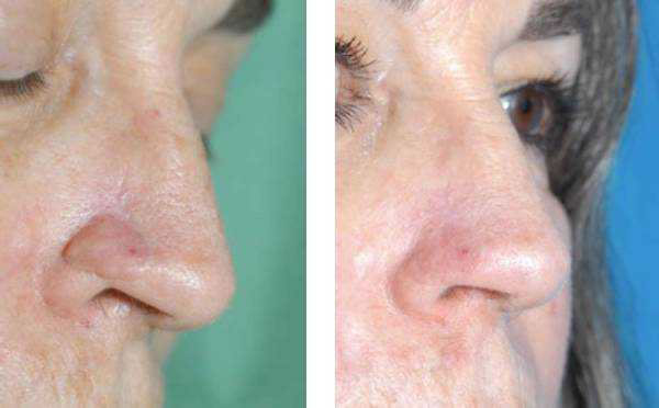 Stigmata of a reconstructed nose can be hidden