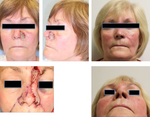 Moderate Nose Reconstruction