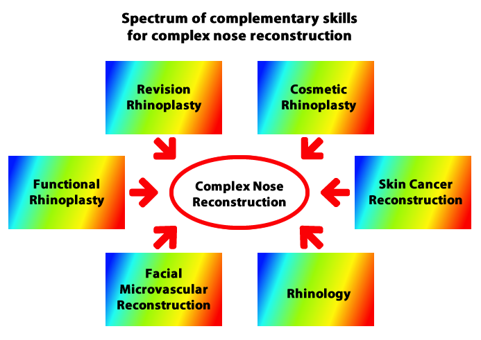 Complex nose reconstruction